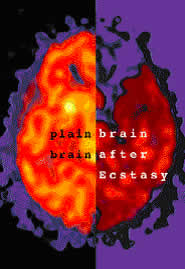 Ecstasy Brain Pictures